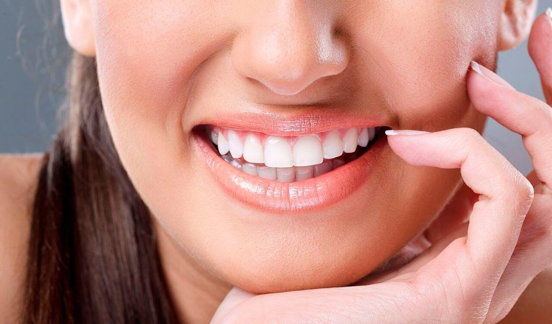 Как ухаживать за зубами после их отбеливания?